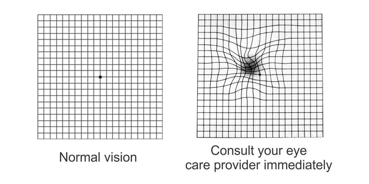 Amsler Grid Results